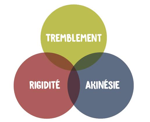 La triade Parkinsonnienne: tremblement, rigidité, akinésie