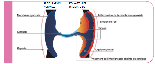 articulation normale versus articulation touchée par la polyarthrite rhumatoïde