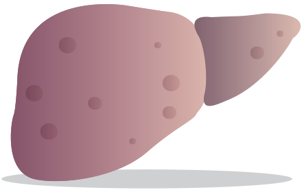 fibrose du foie hepatite c