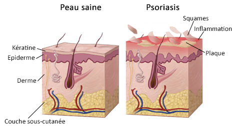 peau saine et peau psoriasique